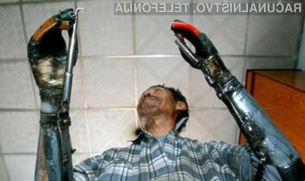 Doma izdelane bionične roke so možakarju znatno izboljšale kakovost življenja!