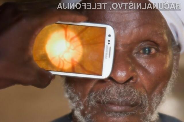 Za pregled očesa bo kmalu zadoščal le pametni mobilni telefon.