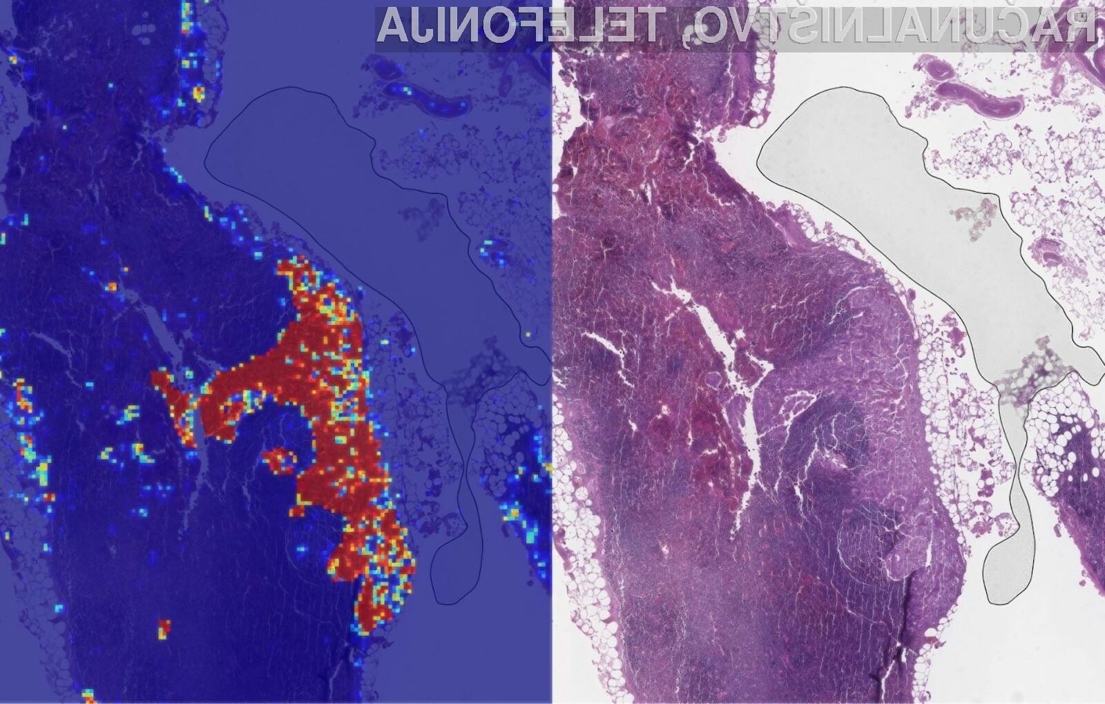 Googlova umetna inteligenca lahko s kar 99 odstotno natančnostjo prepozna rakave celice!